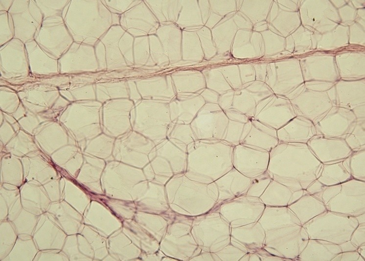 Fat cells in adipose tissue