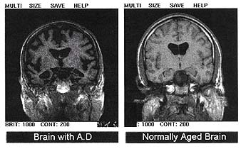 MRI showing an Alzheimers affected brain