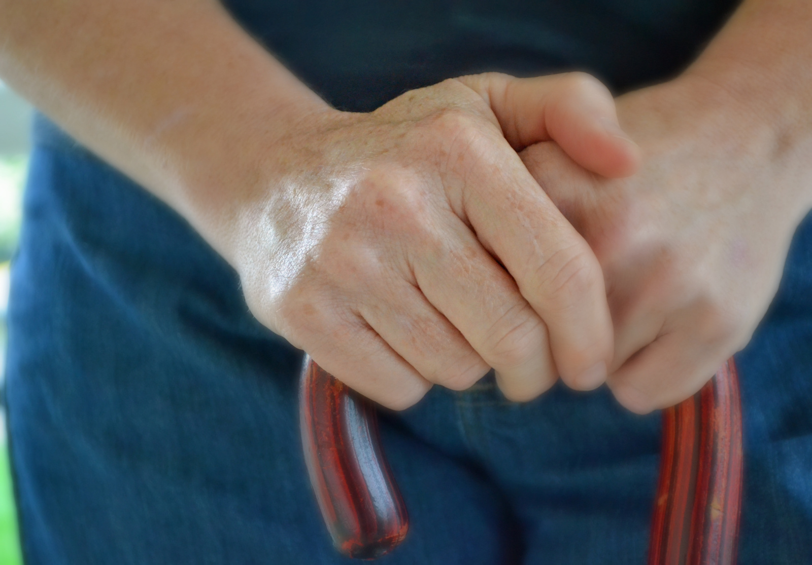 Multiple Sclerosis Hands