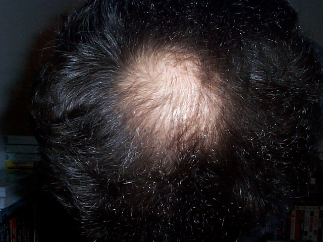 A bald patch