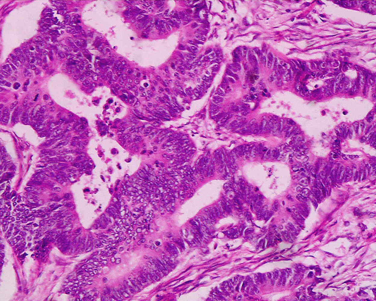 Adenocarcinoma highly diffrerentiaded from the rectum