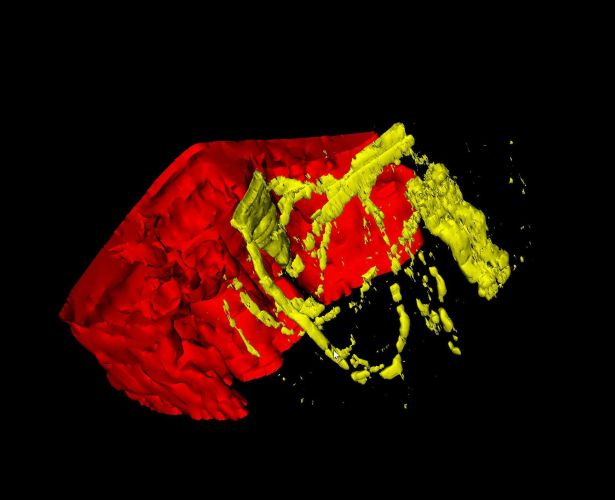 3D tissue imaging