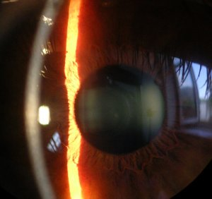 Slit lamp image of cornea, iris and lens.
