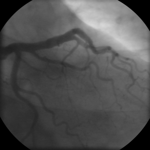 The coronary angiogram (LCA) of a man.