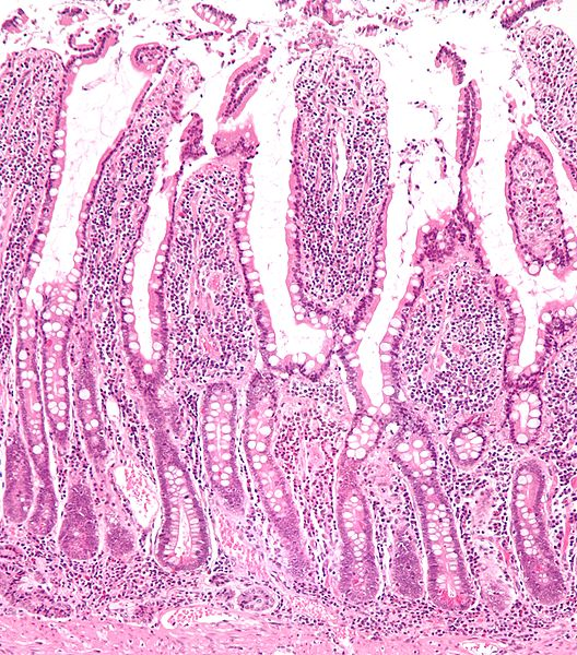 Low magnification micrograph of small intestinal mucosa. H&E stain.