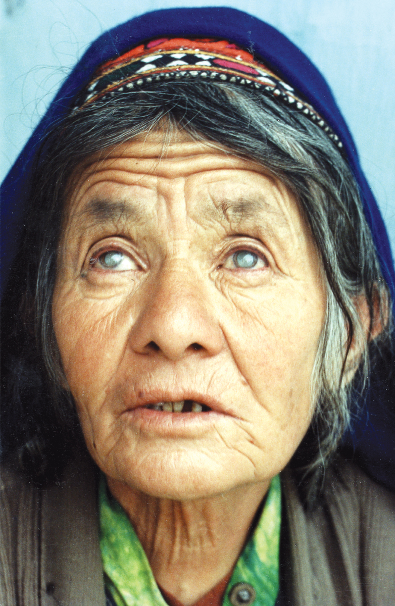 Woman cataracts
