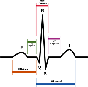 Schematic diagram of normal sinus rhythm for a human heart