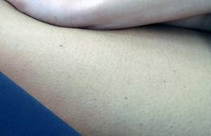 A picture to illustrate pigmentation of human skin.