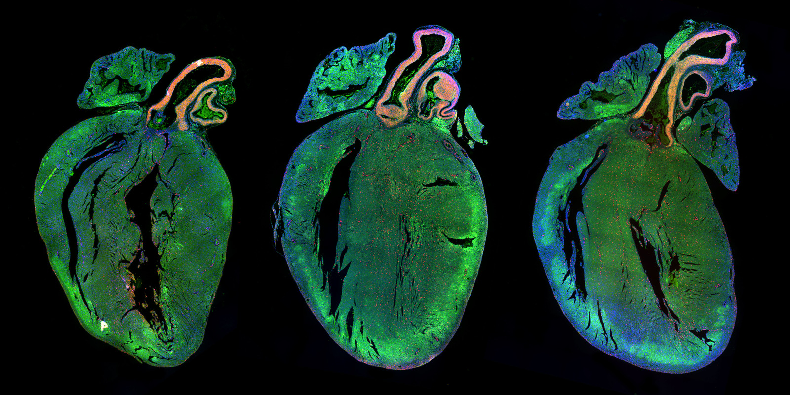 Neonatal rat hearts treated with a control microRNA (left) or two human microRNAs strongly increasing cardiomyocyte proliferation (middle and right).