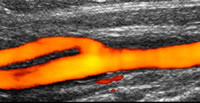 Figure 2 - Doppler visualisation of blood flow through the carotid artery - click to enlarge.