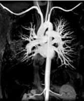 Figure 6 - MRA - magnetic resonance angiography - Click to enlarge.