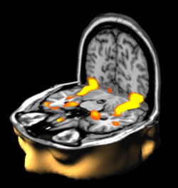 Figure 4. When you recognize a familiar face the parts of the brain highlighted in orange on this functional magnetic resonance image (fMRI) light up. In this case 'lighting up' means there is increased blood flow to the areas that are working hardest. Functional MRI allows these regions to be visualized. Winning image from the Wellcome Trust Biomedical Image Award in 2003 (image courtesy Mark Lythgoe and Chloe Hutton).