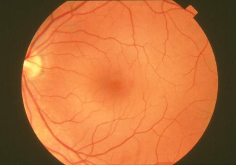 Fundus photograph-normal retina