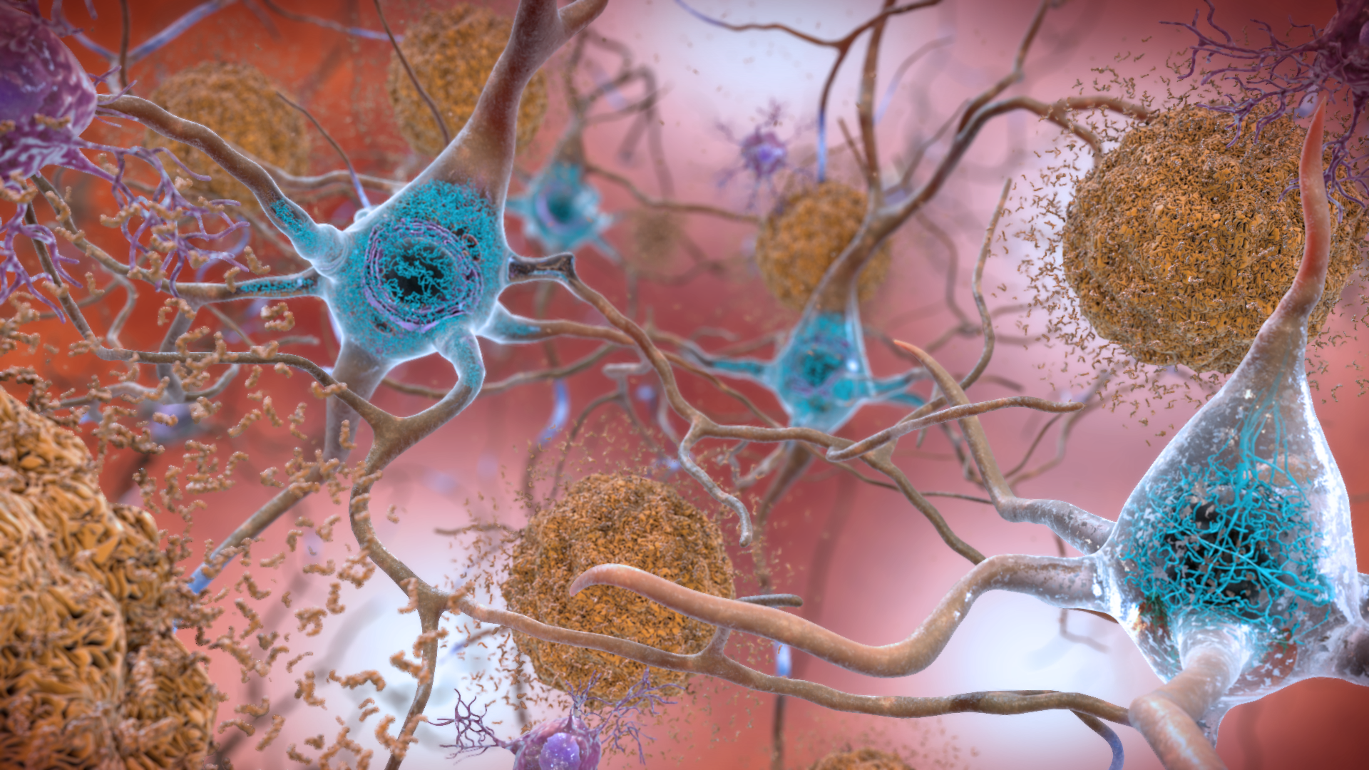 Cartoon of nerve cells (neurones) affected by Alzheimer's Disease with beta-amyloid plaques and neurofibrillary tangles