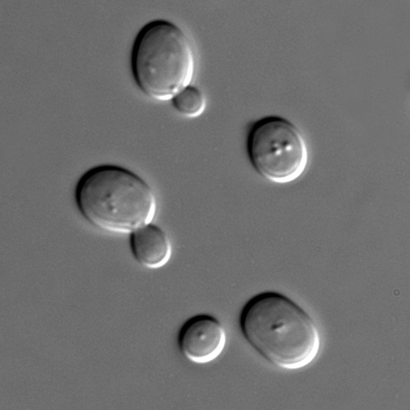 Saccharomyces cerevisiae cells in DIC microscopy.