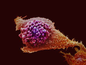 A Prostate Cancer Cell