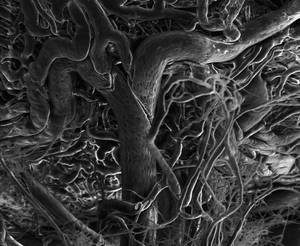 Ocular blood vessels imaged by environmental scanning electron microscopy.