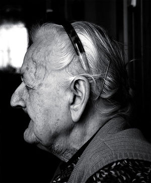 The effects of old age on the human face