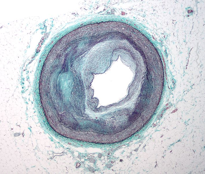 Low magnification micrograph of the distal right coronary artery with complex atherosclerosis and luminal narrowing. Stained with Masson's trichrome.