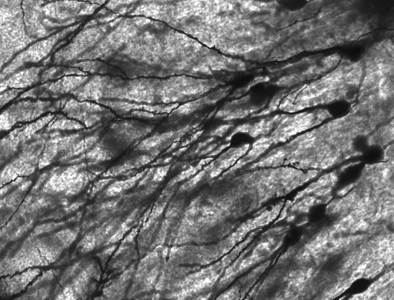 Image of Golgi stained neurons in the dentate gyrus of an epilepsy patient. 40 times magnification.