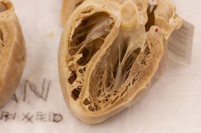 Human Heart Plastinate