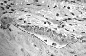 Osteoblasts actively synthesizing osteoid