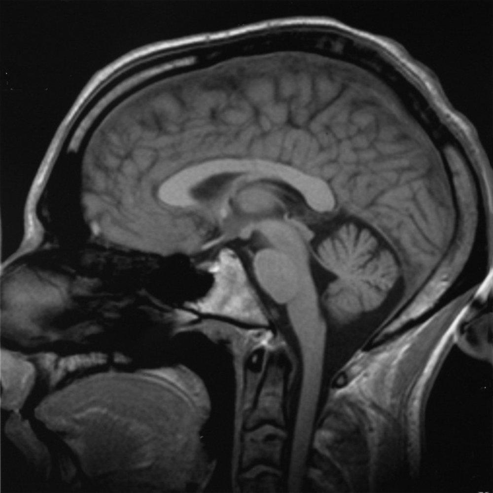 Saggital transection through the human brain