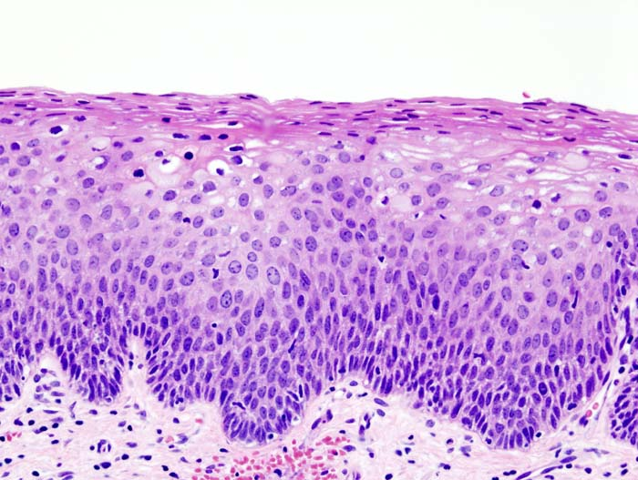Cervical cancer Intraepithelial neoplasia