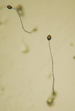 Dictyostelium Fruiting Body