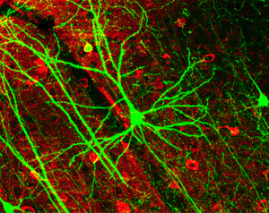 GFP-expressing nerve cells in the mouse cerebral cortex