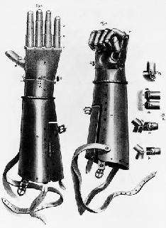 A 16th Century prosthetic hand