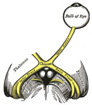The left optic nerve and the optic tracts