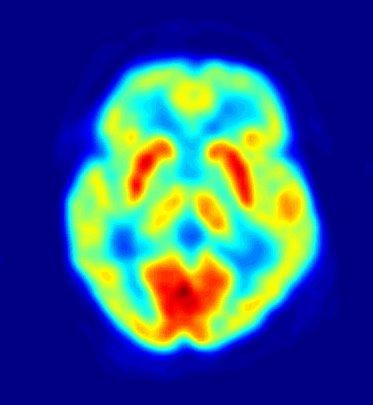 PET image of a human brain