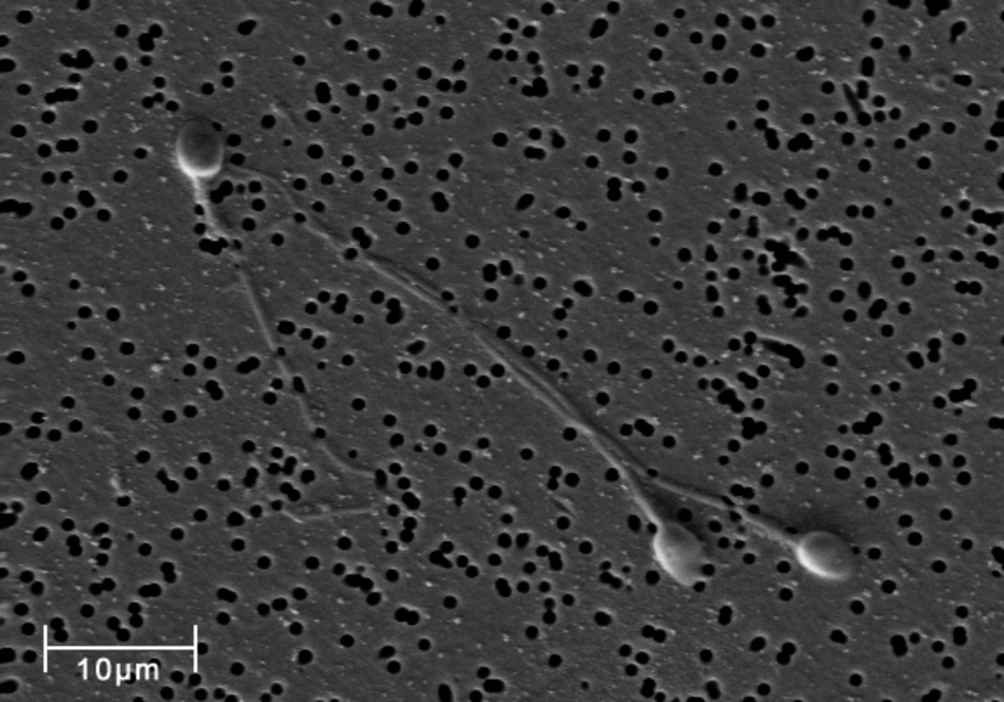Micrograph by scanning electron microscope (SEM) of human sperm cells magnified 3140 times