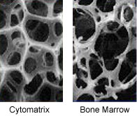 The cytomatrix closely resembles the structure of bone marrow.