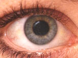 Normal_eye_no_cataract
