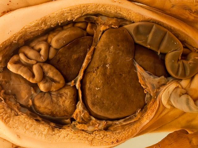 Diaphragmatic hernia of Morgagni