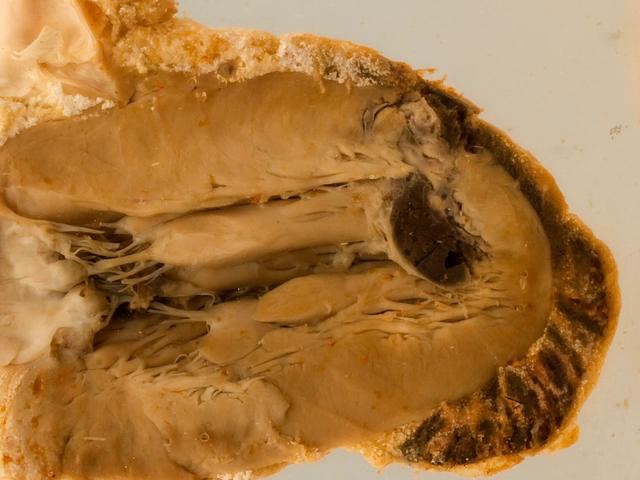Cardiac rupture following myocardial infarction