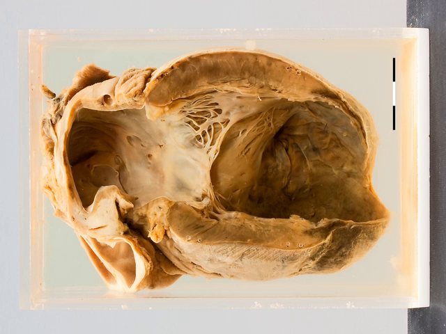 Left ventricular aneurysm