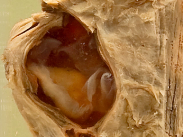 Hydatid cysts (Heart)