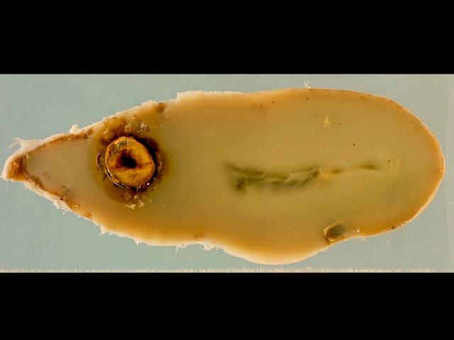 Mucocoele of the gallbladder