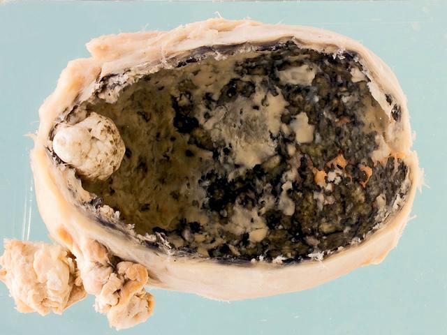 Empyema of the gallbladder