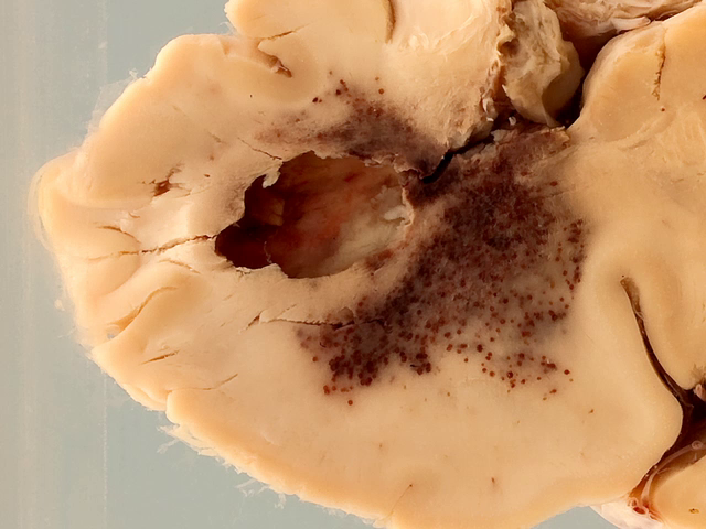 Cerebral abscess with ventriculitis
