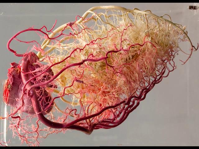Coronary arteries III (resin cast)