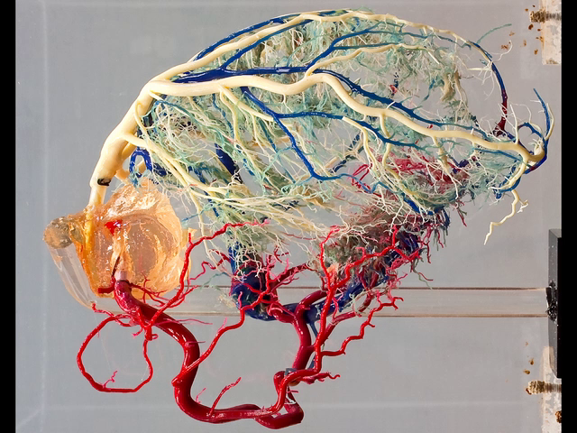 Normal cardiac venous system