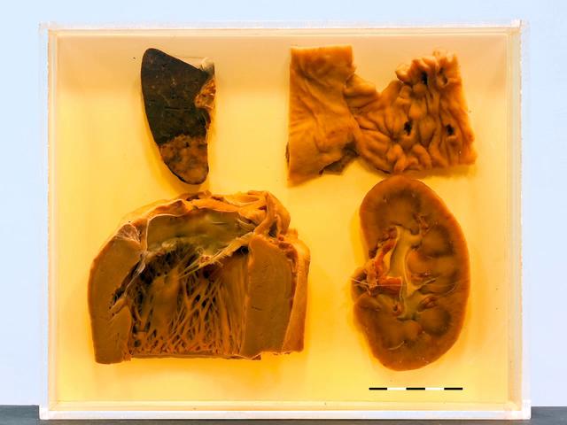 Libman-Sacks endocarditis in SLE