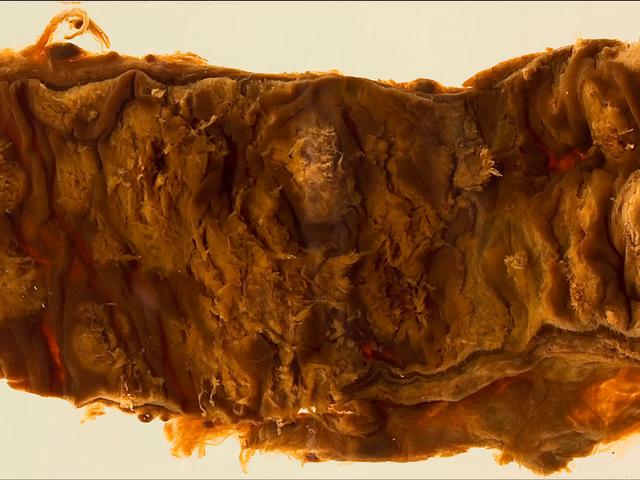 Amoebiasis (Colon)