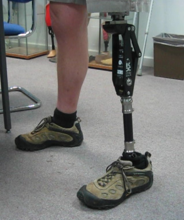 prosthetic_leg