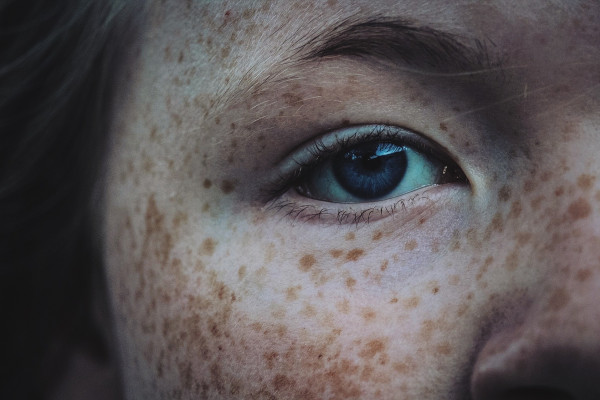 A freckled face