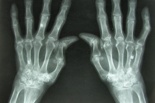 Arthritis breaks down the cartilage between joints, leading to pain, stiffness and swelling.